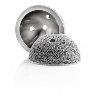Acetabular cups with integrated Trabecular Structures™ for improved osseointegration